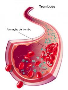 trombose-doenca
