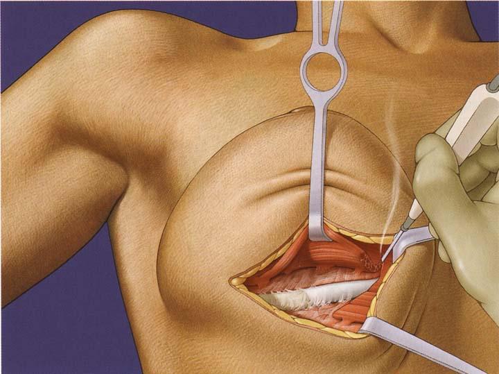 Injeções em um peito de aumento