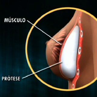 protese submuscular