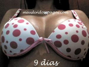 9dias