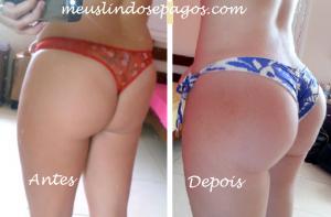 antes e depois2