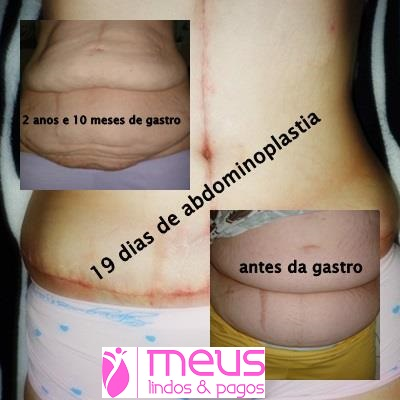 abdominoplastia video