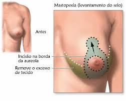 mastopexia4