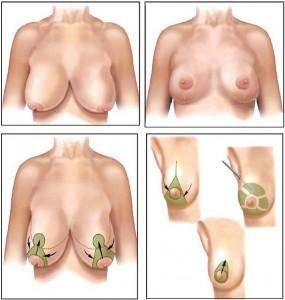 redução de mama1