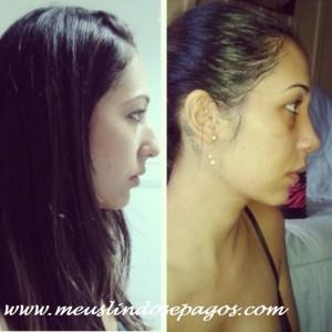 antes e depois 9 dias