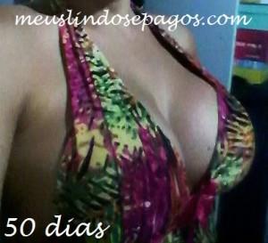 50dias