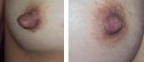 antes e depois frente