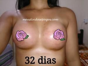32dias