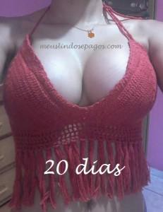 20dias