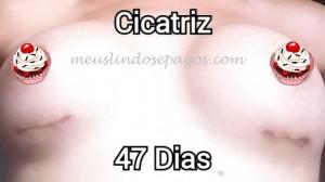47dias2
