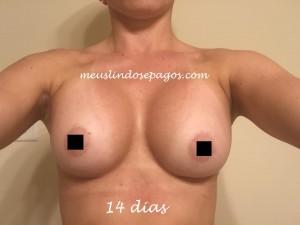 14dias1