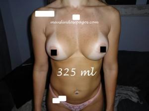 325 csi