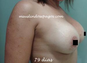 79dias (4)