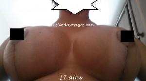 17dias1
