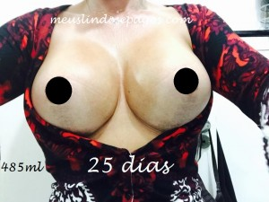 25dias1