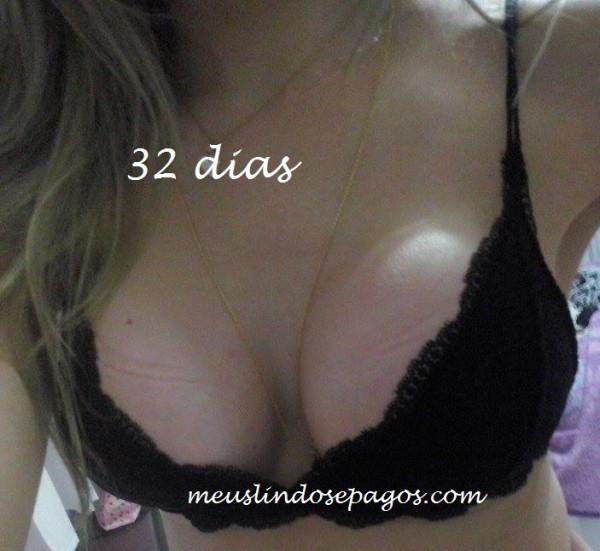 32dias3
