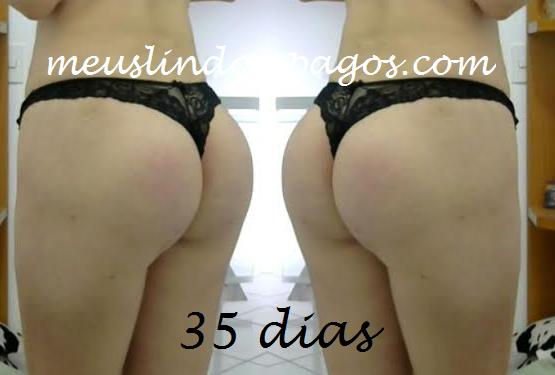 35dias6