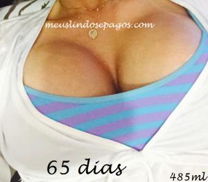 65dias