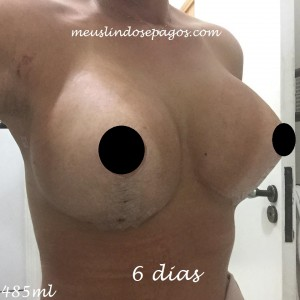 6dias1