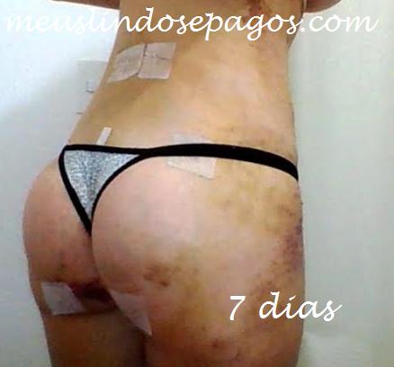 7dias5