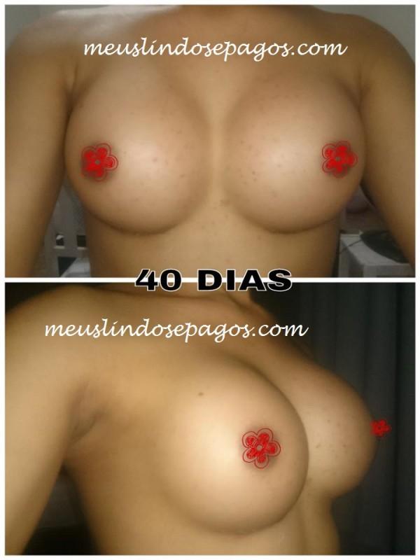 40dias