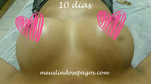 10dias