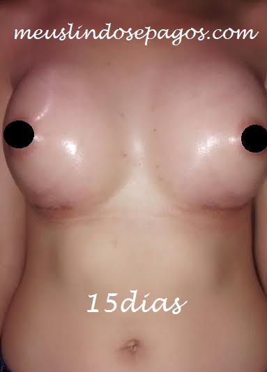15dias1