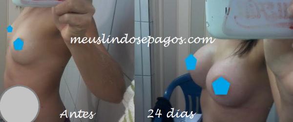 24dias1