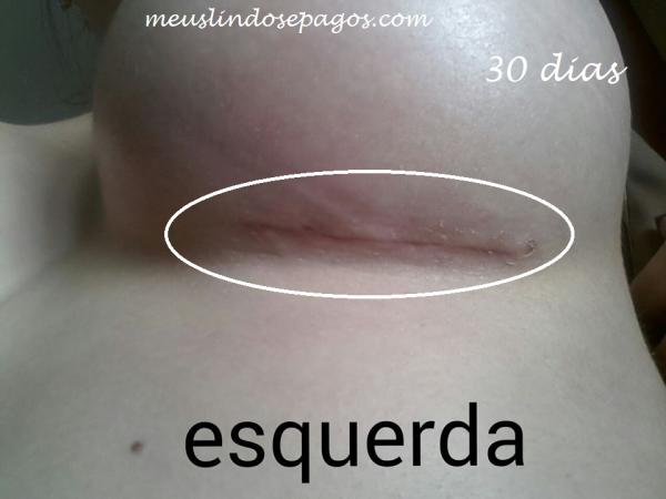30dias3