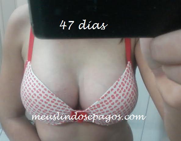 47dias10