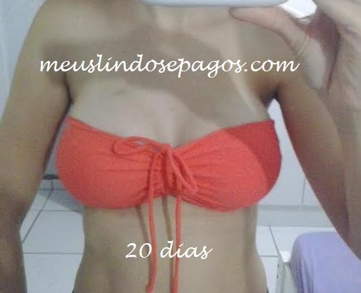 20dias3