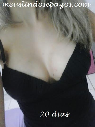 20dias4