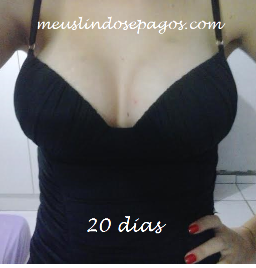 20dias5