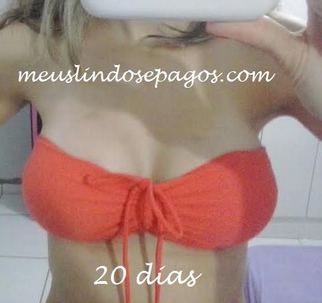 20dias8