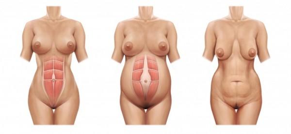 abdome antes,durante e depois