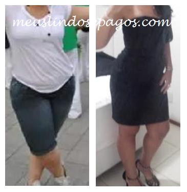 antes e depois1
