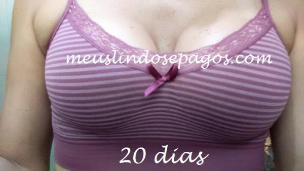 20DIAS2