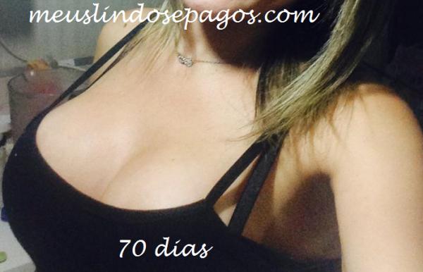 70dias