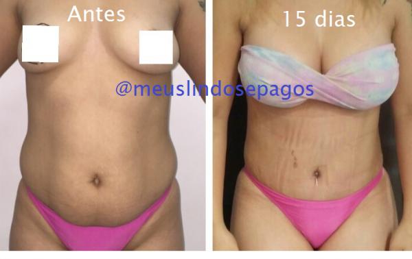 antes e 15 dias-mont