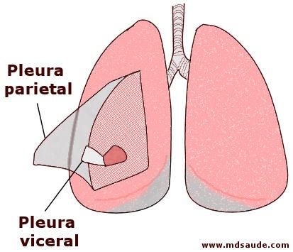 pleura pneumotorax-PAINT