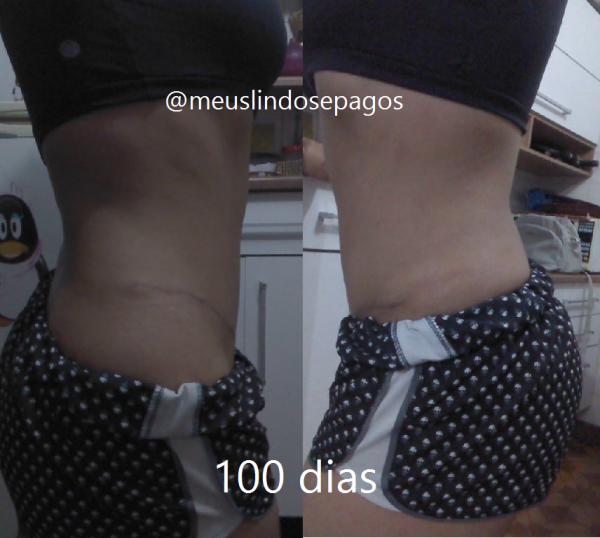 100dias5