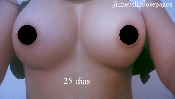 25dias3
