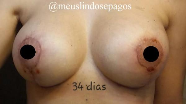 34dias1
