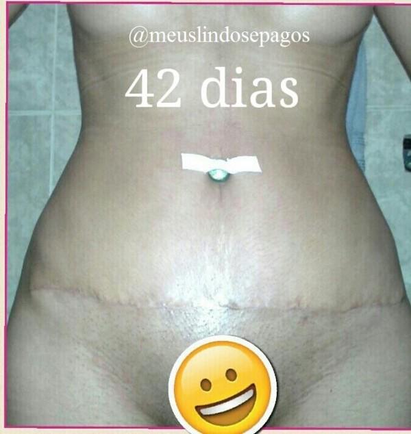 42dias5