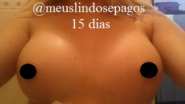15dias-1