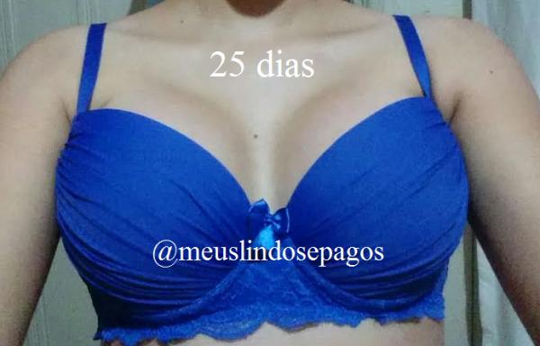 25dias