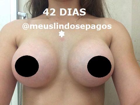 42dias1