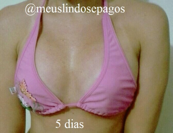 5dias