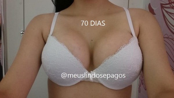 70dias1
