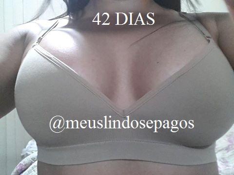 42dias